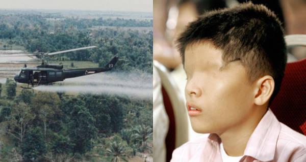 A Vietnamese boy that is a victim of Agent Orange