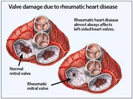 Rheumatic Fever Valve Damage